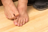 Prevention Tips for Athlete's Foot